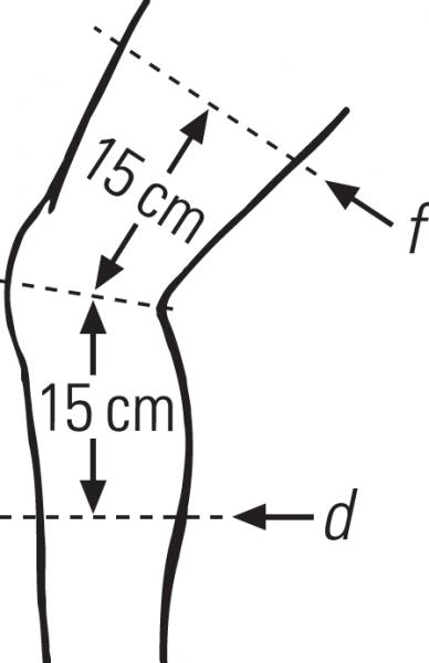 Kniebandage mit Reißverschluss Select GenuZip